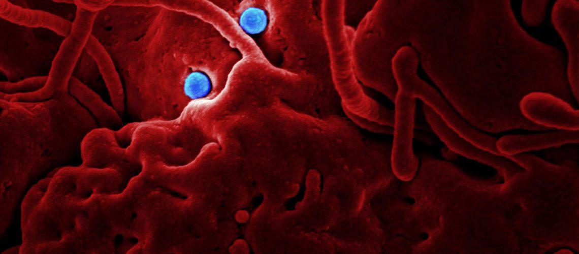 illustration-infections-nosocomiales-johana-hodroge-avocat-rouen